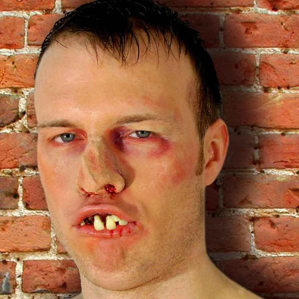 Dr. Dent`s Boxer Zähne