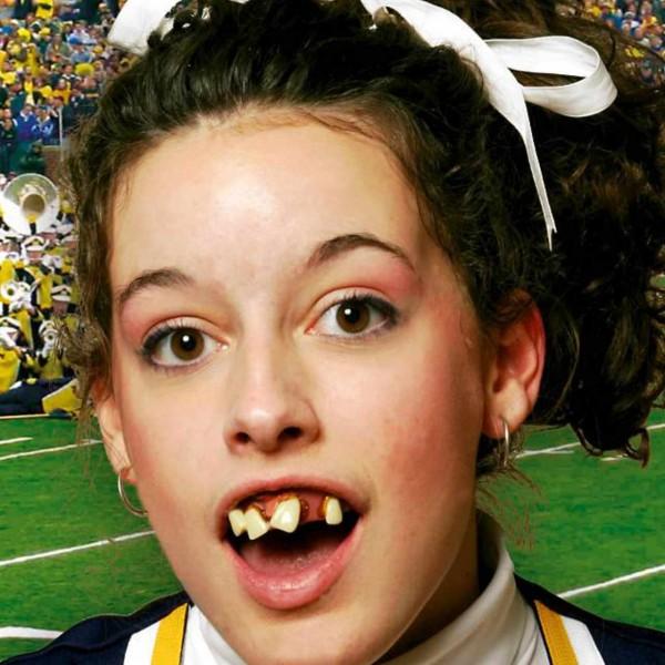 Dr. Dent`s Cheerleader Zähne